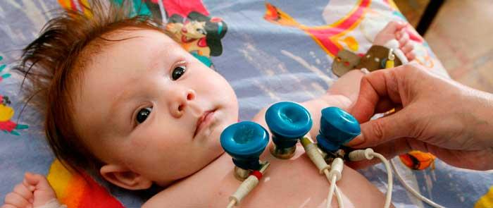 электрокардиограмма детям