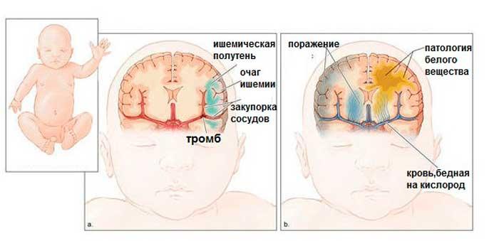 Ишемия головного мозга у новорожденных: последствия и лечение