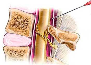 Головная боль после спинальной анестезии: как снять