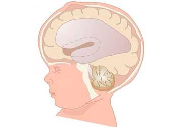 Скопление жидкости в голове у грудничка