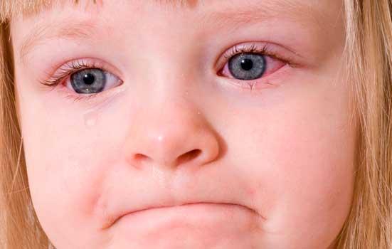 Покраснению склеры глаз
