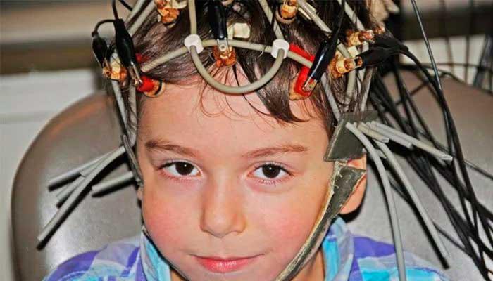 РЭГ головы: что это такое и ее расшифровка...