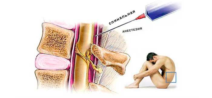 Спинальная анестезия боль дырка