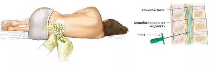 Ноющая боль в правой части поясницы отдающая в ногу