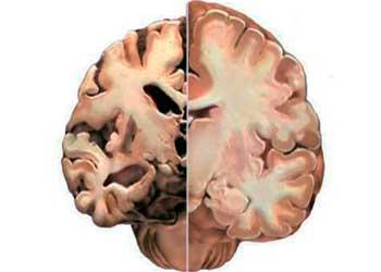 Очаговые изменения вещества мозга дисциркуляторного характера