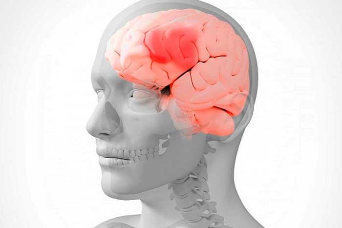 как называется болезнь когда болит голова