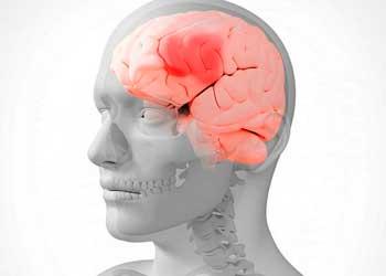 Болезнь головы название