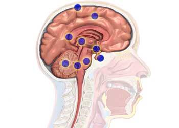 Злокачественная опухоль мозга в начальной стадии лечится дешёвыми препаратами — Остановить старение человека