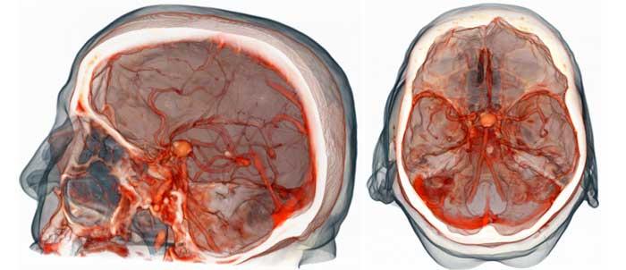 МР ангиография сосудов головного мозга