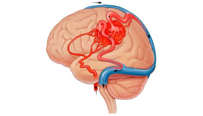 Патологии сосудов и вен в мозге