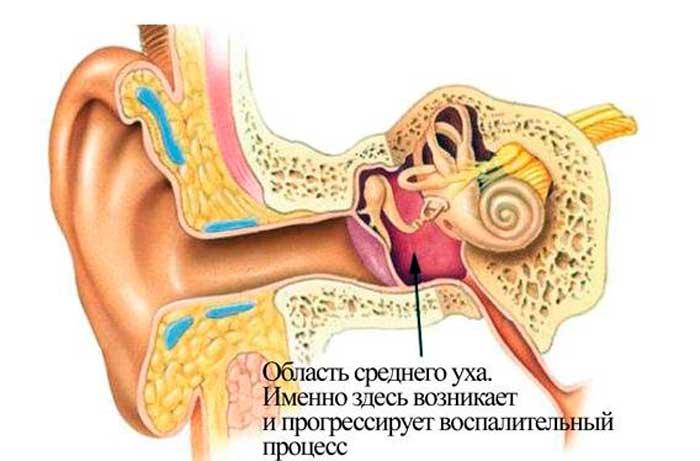 воспалительный процесс в зоне среднего уха