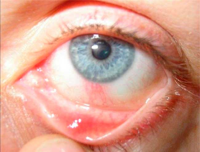 расширение сосудов глаза при сифилисе