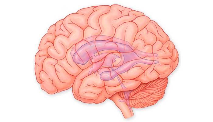 Водянка головного мозга у детей и взрослых: причины, лечение