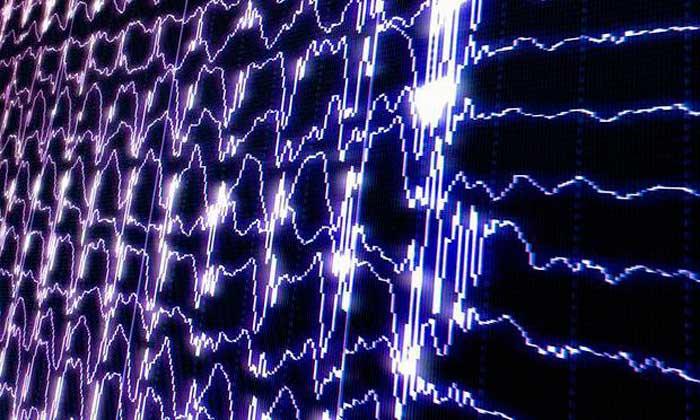 электроэнцефалограмма головного мозга
