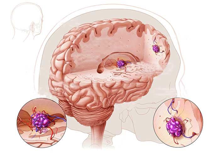 Симптомы и лечение каверномы головного мозга