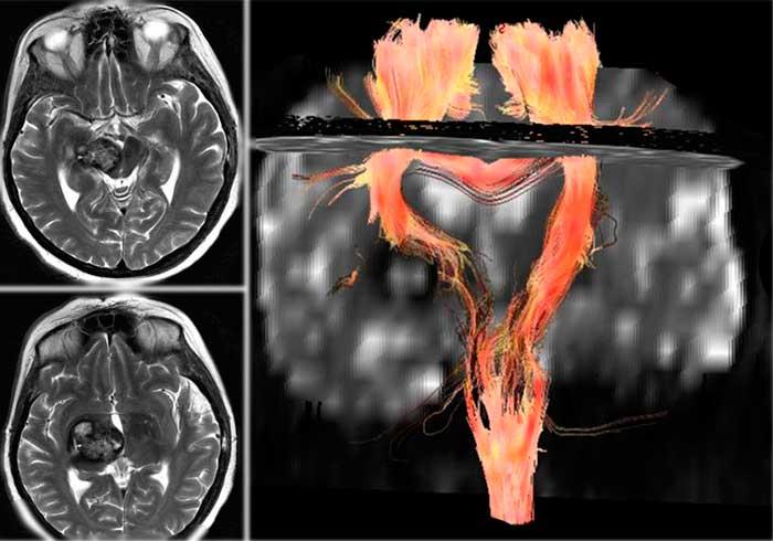 МРТ-трактография у больного с глубинно расположенной каверномой