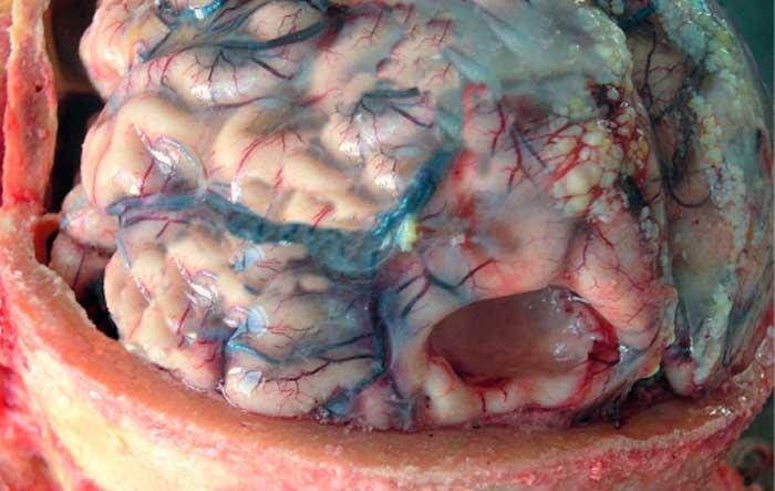 Невроз мозга симптомы - Лечение неврозов