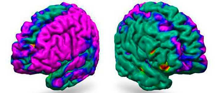 легкие диффузные изменения биоэлектрической активности головного мозга