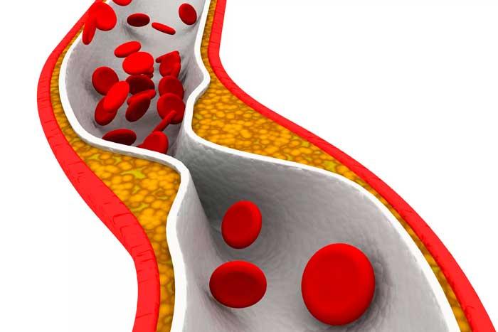 сужение кровеносных сосудов от курения