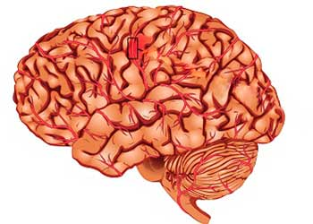 Инсульт с гематомой в голове последствия