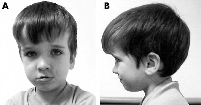 аутизм при гидроцефалии
