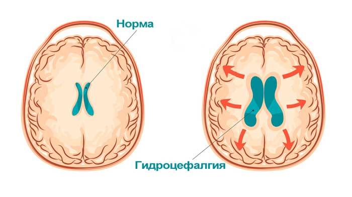 Гидроцефалгия