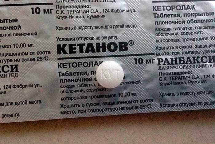 Помогает ли Кетанов от головной боли
