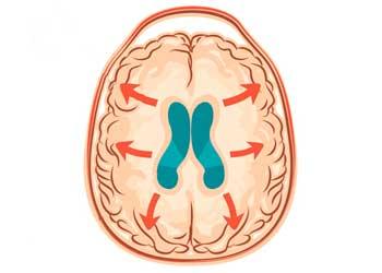 Гидроцефалия головного мозга передается по наследству