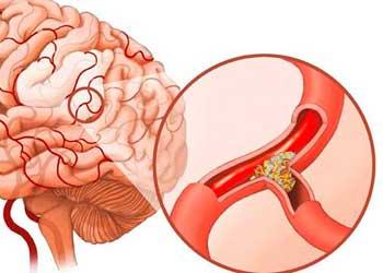 Органическое поражение головного мозга у детей симптомы