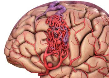 m malformatsiya sosudov golovnogo mozga - Malformações vasculares do cérebro espécies sintomas diagnóstico tratamento