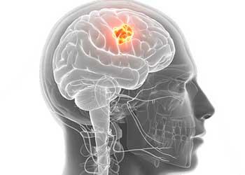 Головные боли при опухоли головного мозга: как болит голова