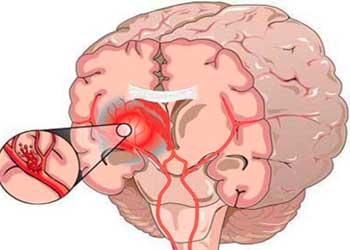 Внутрижелудочковое кровоизлияние (спонтанное, обширное) у взрослых и новорожденных внутримозговое, отек мозга