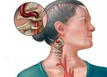 Краниалгия что это за диагноз