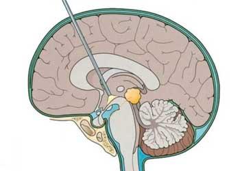 Шунтирование сосудов головного мозга последствия после операции