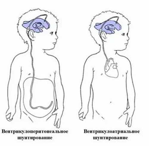 Шунтирование головного мозга при гидроцефалии