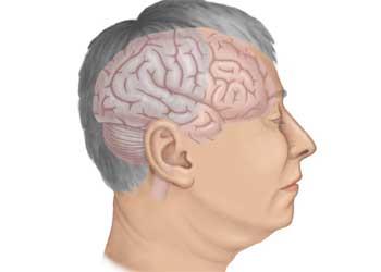 Удаление опухоли головного мозга - наиболее эффективный способ лечения злокачественных и доброкачественных новообразований в тканях мозга, который демонстрирует высокую эффективность