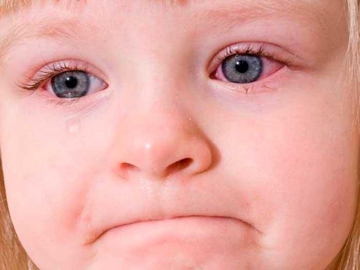 инфекционное заболевание глаз