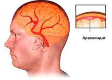 Симптомы арахноидита головного мозга
