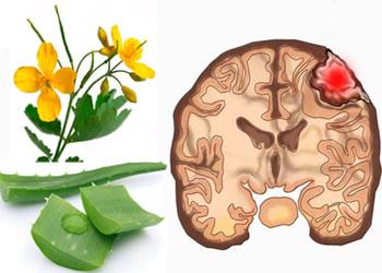 Лечение народными средствами рака головного мозга