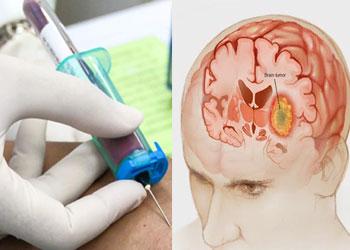 Анализ крови при опухоли головного мозга: что показывает